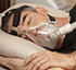 Sleep Apnea Tretment Richmond Hill at Dentistry in Oak Ridges by Dr. Stern